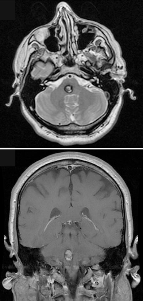 angioma calcificato alla testa