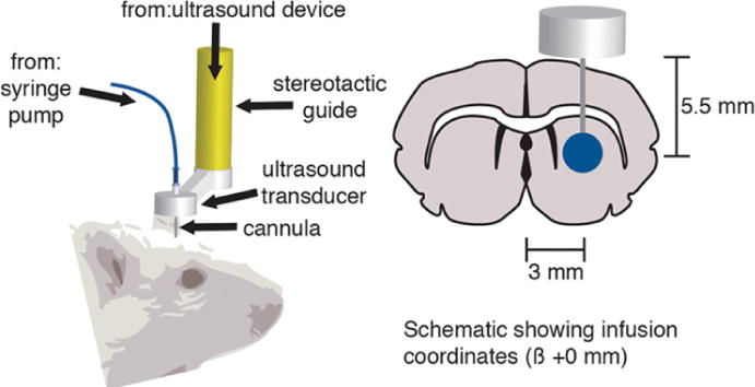 Ultrasound-assisted convection-enhanced delivery to the