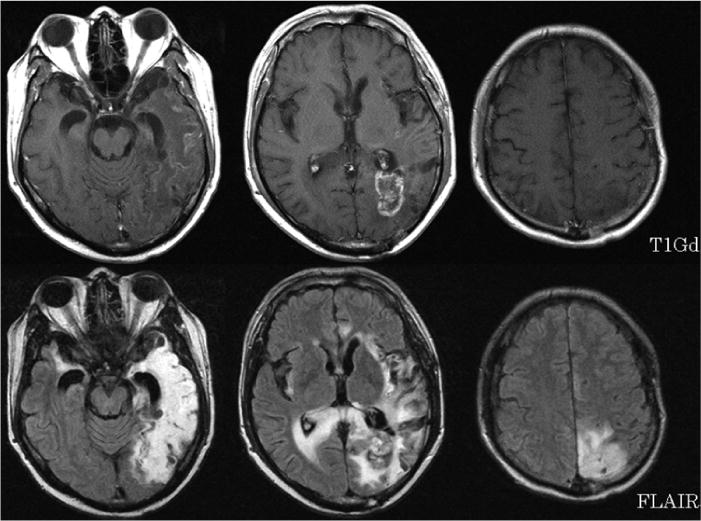 Relapse Of Herpes Encephalitis Induced By Temozolomide Based Chemoradiation In A Patient With Malignant Glioma In Journal Of Neurosurgery Volume 118 Issue 2 2013