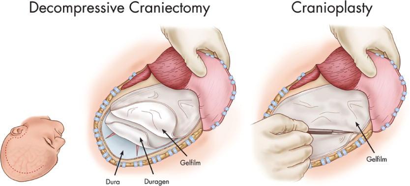 decompressive craniectomy using gelatin film and future bone flap