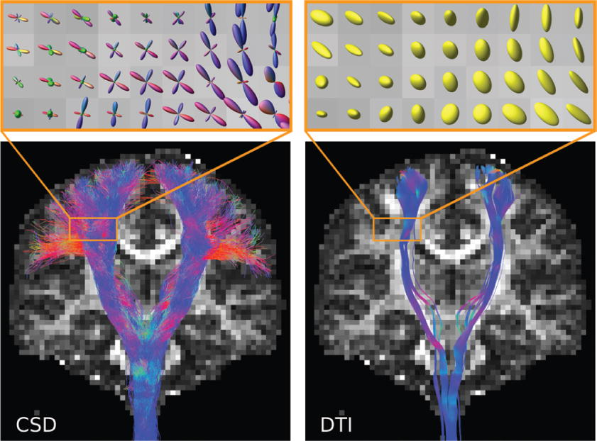 White matter fiber tractography: why we need to move beyond