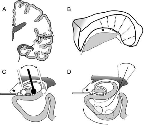 Transsylvian Hippocampal Transection For Mesial Temporal Lobe