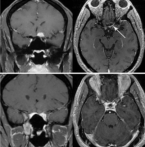 Endoscopic Endonasal Surgery For Suprasellar Meningiomas