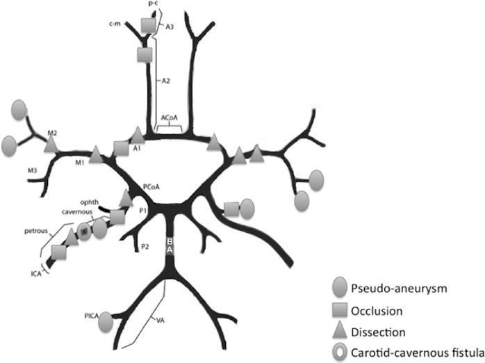 Vascular Complications Of Penetrating Brain Injury Comparison Of