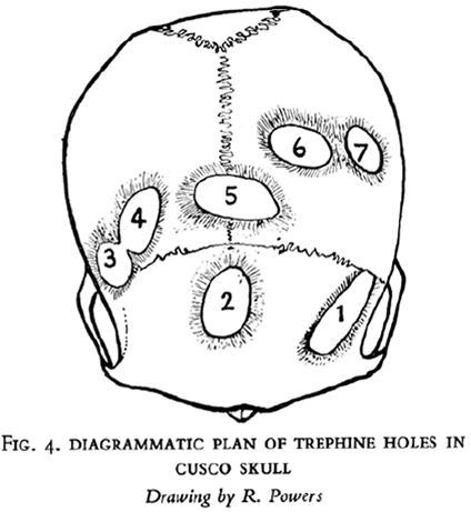 Expanding Neurosurgery In Journal Of Neurosurgery Volume 121 Issue