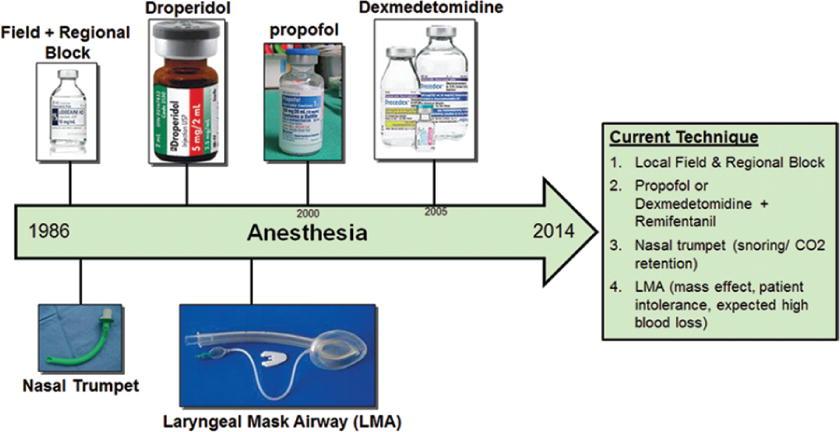 Awake craniotomy to maximize glioma resection: methods and