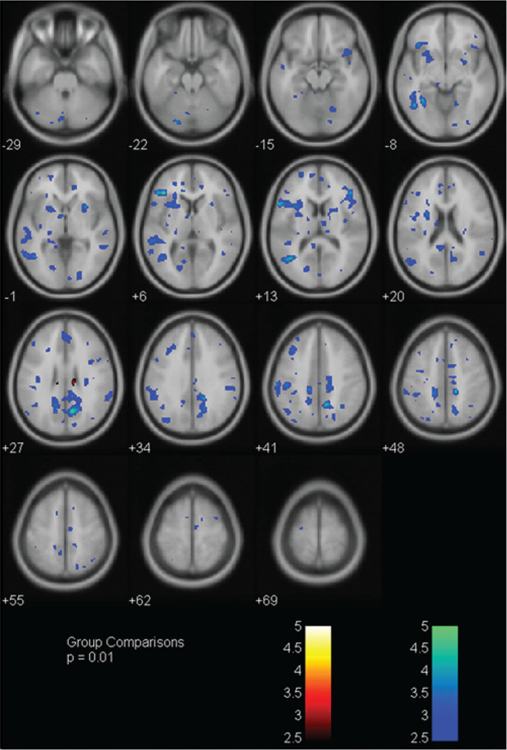 Brain magnetic resonance imaging CO2 stress testing in adolescent