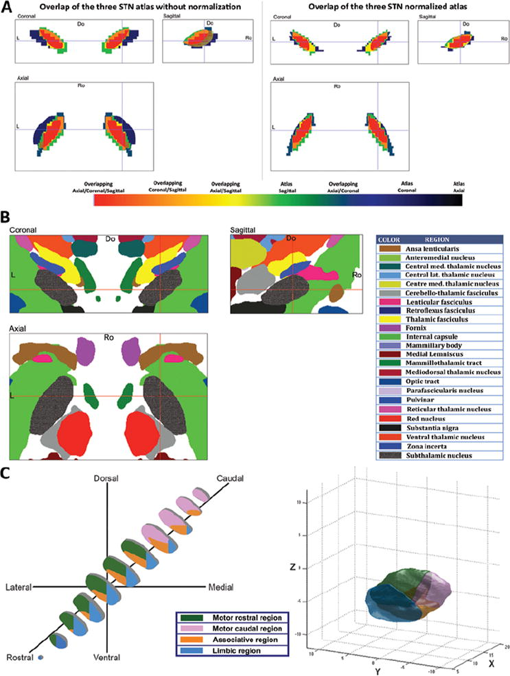 Stimulation Sites In The Subthalamic Nucleus And Clinical
