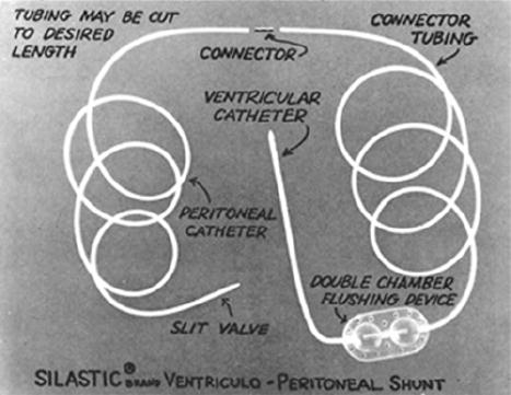 Ventricular catheter development: past, present, and future in