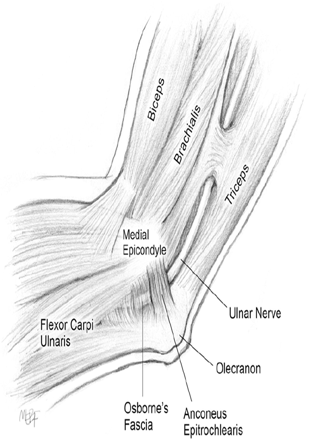 The Anconeus Epitrochlearis Muscle May Protect Against The Development Of Cubital Tunnel