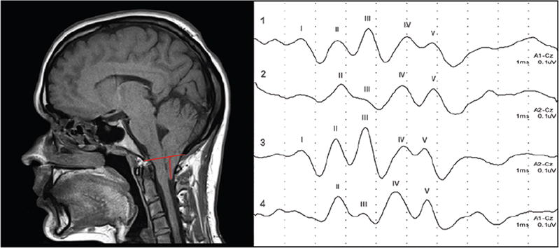 Are evoked potentials clinically useful in the study of