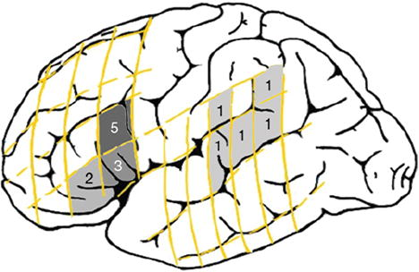 Age of language acquisition and cortical language