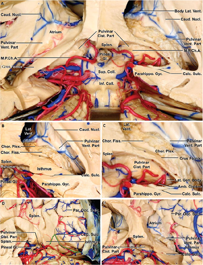 Microsurgical And Endoscopic Approaches To The Pulvinar In