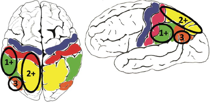 Language Outcomes After Resection Of Dominant Inferior Parietal