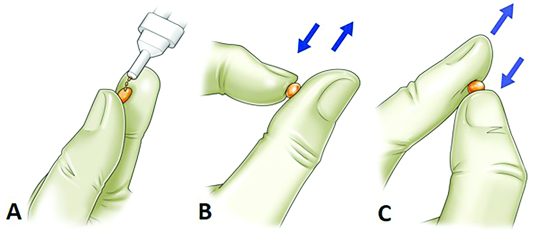 "Birdlime"" technique using TachoSil tissue sealing sheet"