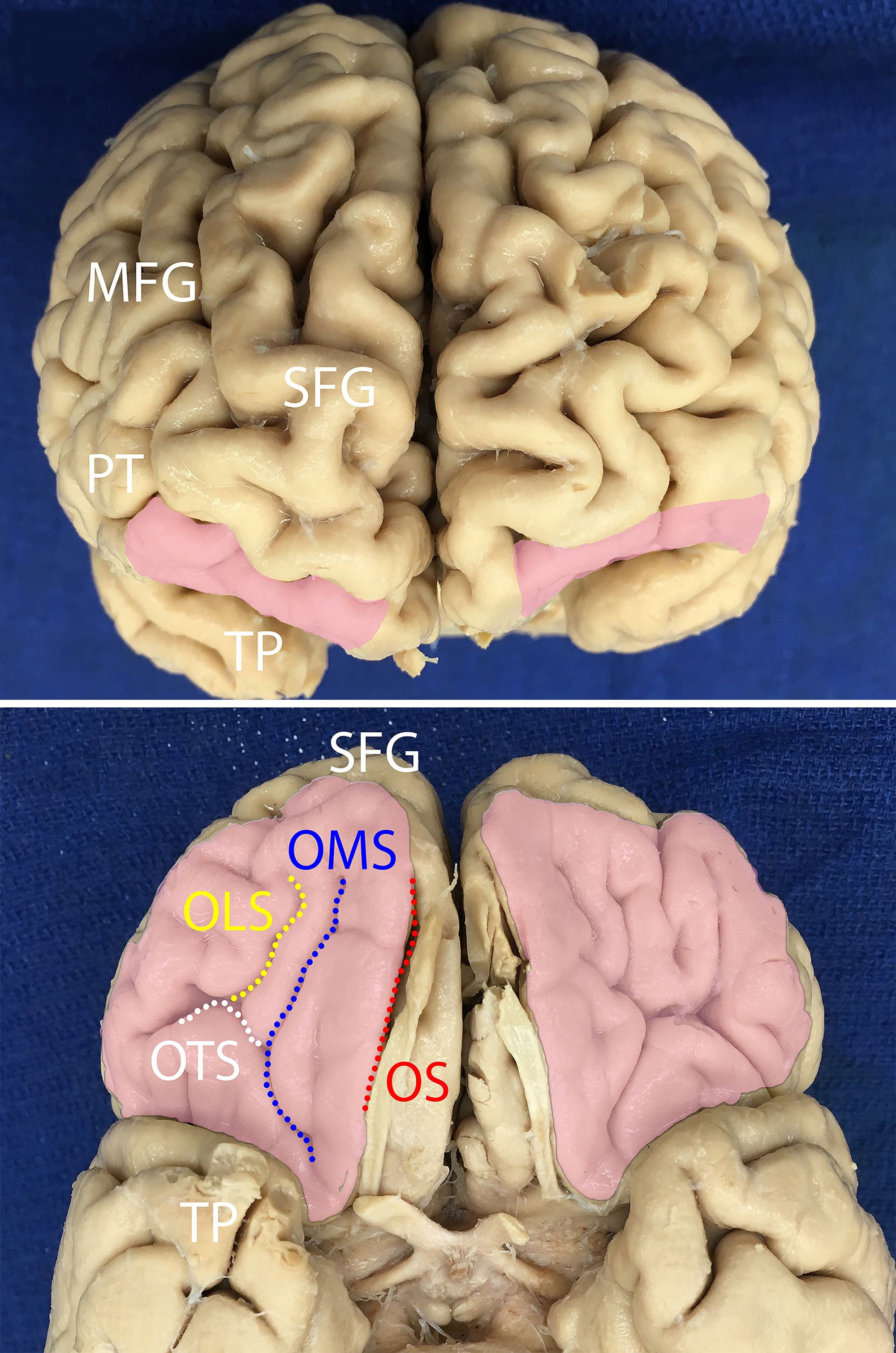 Anatomy And White Matter Connections Of The Orbitofrontal Gyrus