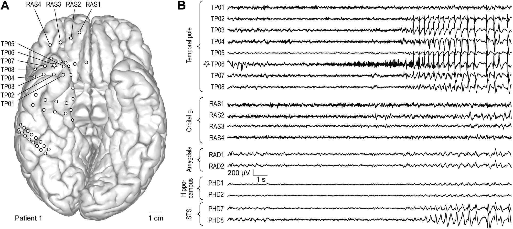 Role of the temporal pole in temporal lobe epilepsy seizure