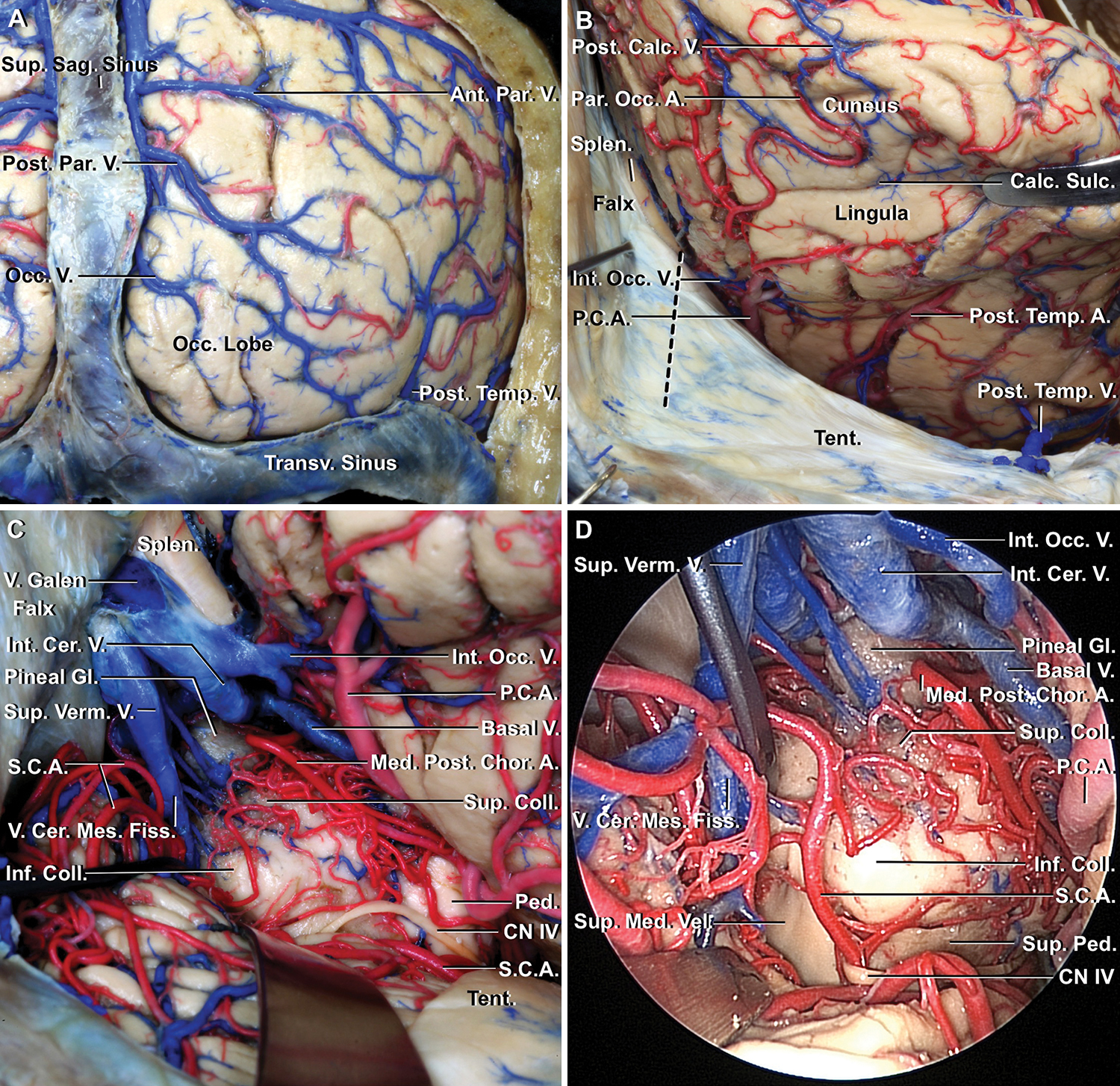 Prevention Of Postoperative Visual Field Defect After The Occipital Open Electrical Panels Are Dangerous C Daniel Friedman Fig 2