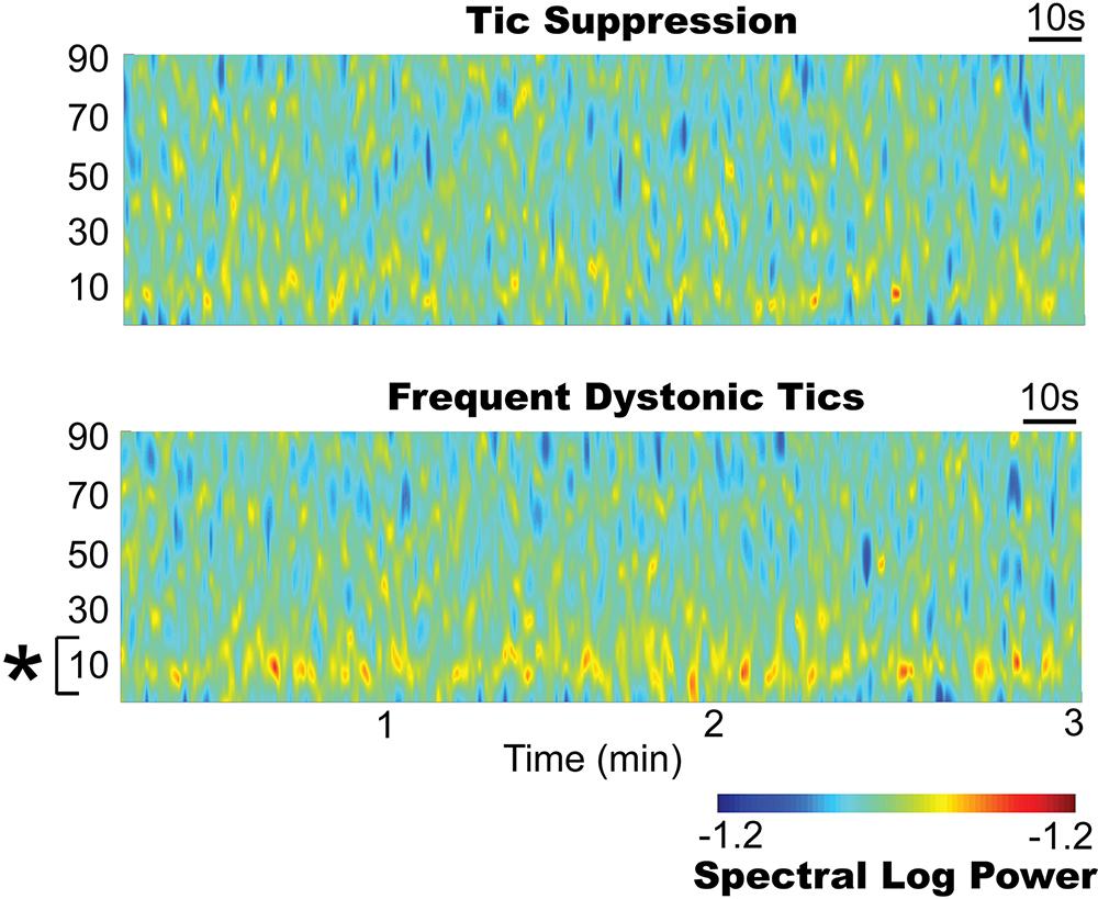Report of a patient undergoing chronic responsive deep brain
