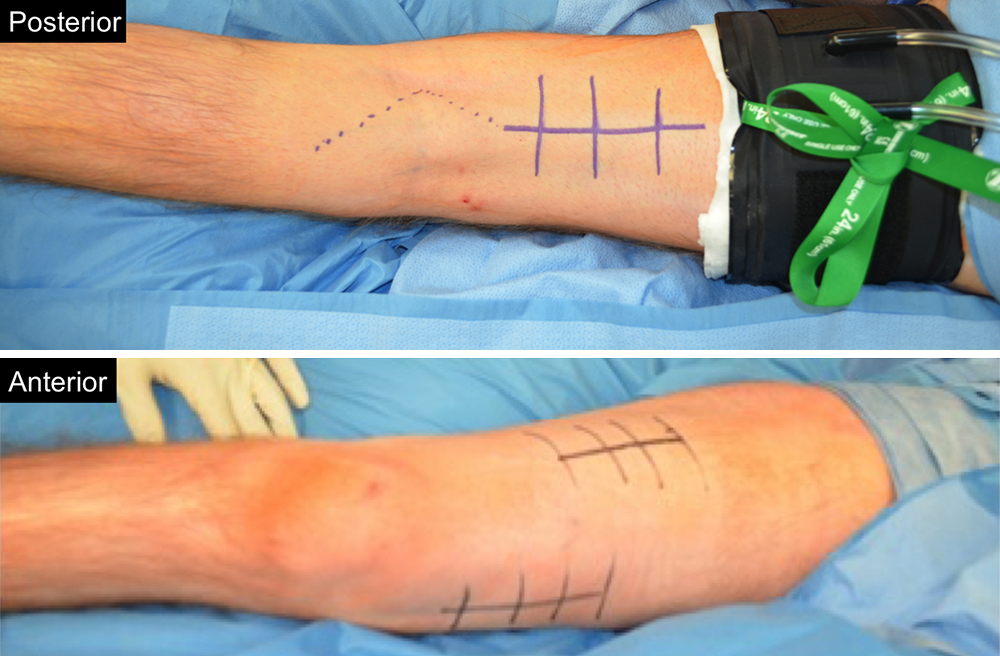 Femoral Nerve Transfers For Restoring Tibial Nerve Function