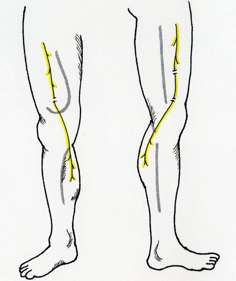 Femoral Nerve Transfers For Restoring Tibial Nerve Function An
