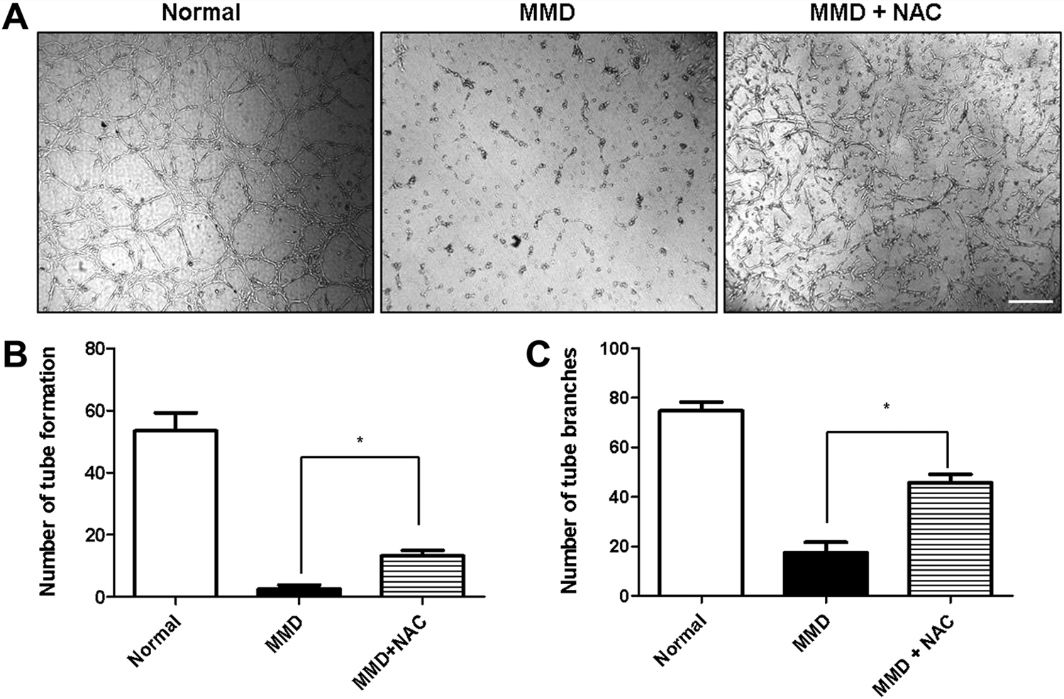 Mitochondrial abnormalities related to the dysfunction of