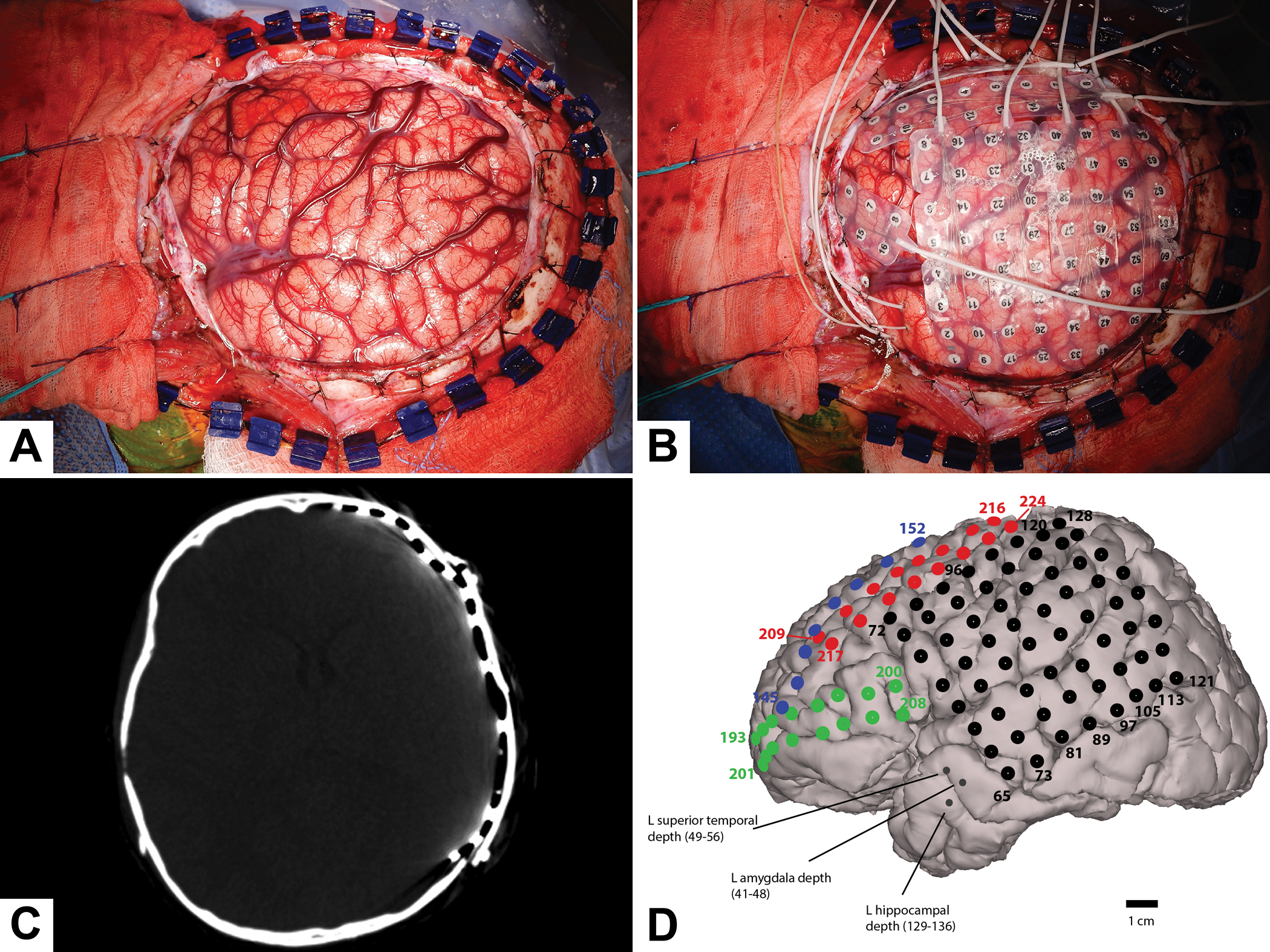 Intracranial EEG for seizure focus localization: evolving