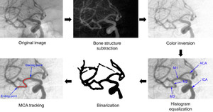 Computer-aided analysis of middle cerebral artery tortuosity