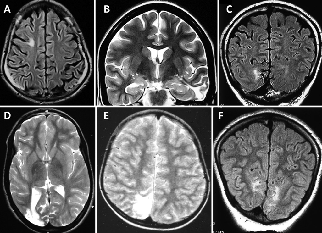 Predictors of seizure outcome following resective surgery