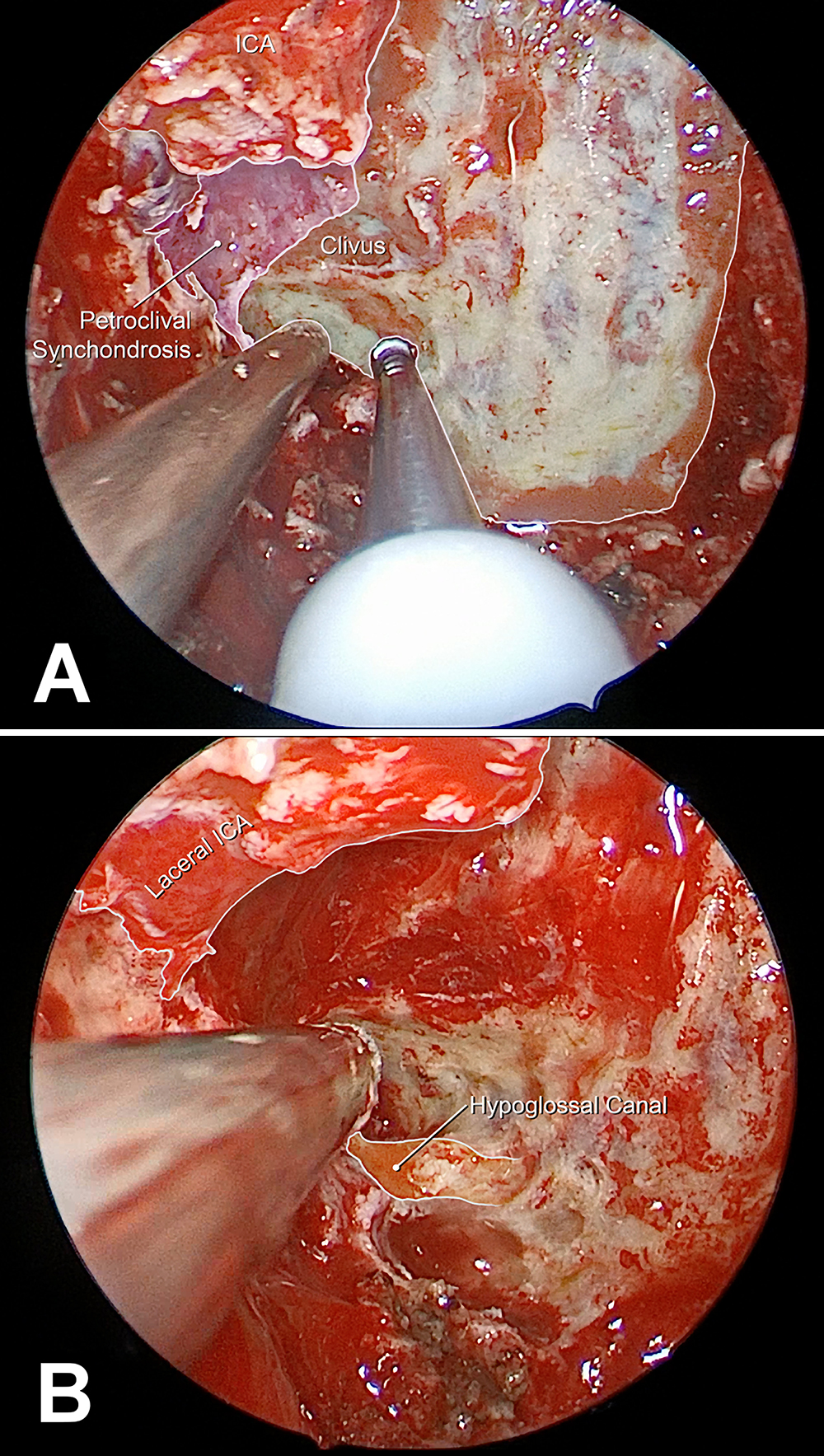Endoscopic Endonasal Transpterygoid Transnasopharyngeal Management Of Petroclival Chondrosarcomas Without Medial Extension In Journal Of Neurosurgery Volume 131 Issue 1 2018 The xiphosternal synchondrosis is a cartilagionous joint between the body of sternum and the xiphoid process. endoscopic endonasal transpterygoid