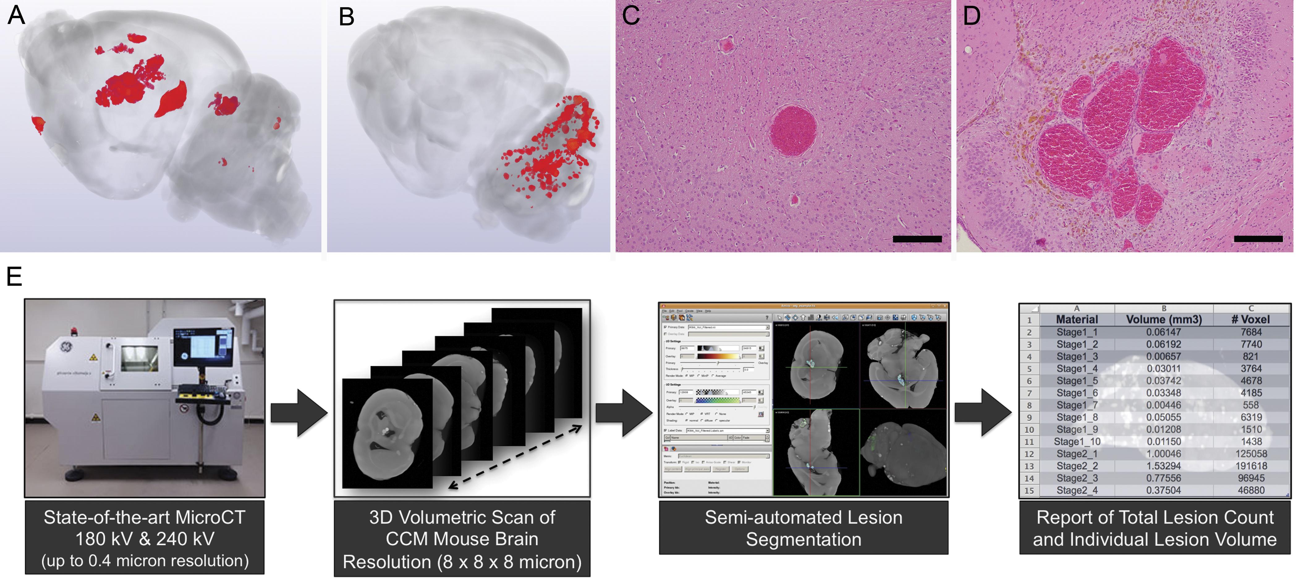 Cavernous angiomas: deconstructing a neurosurgical disease