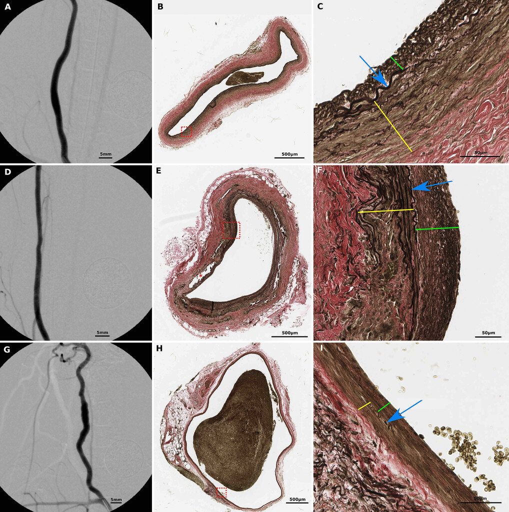 A refined experimental model of fusiform aneurysms in a