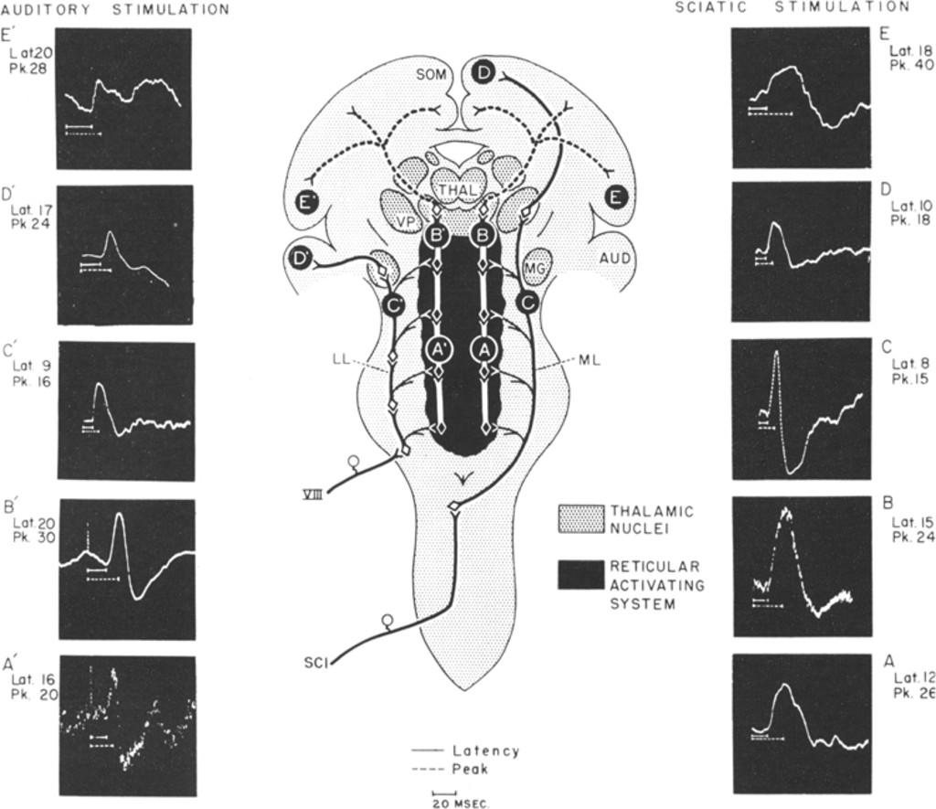 The Reticular Formation in: Journal of Neurosurgery Volume ...