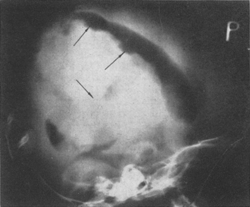 sok genitális szemölcs kezelés a pinworm megszüntetésére