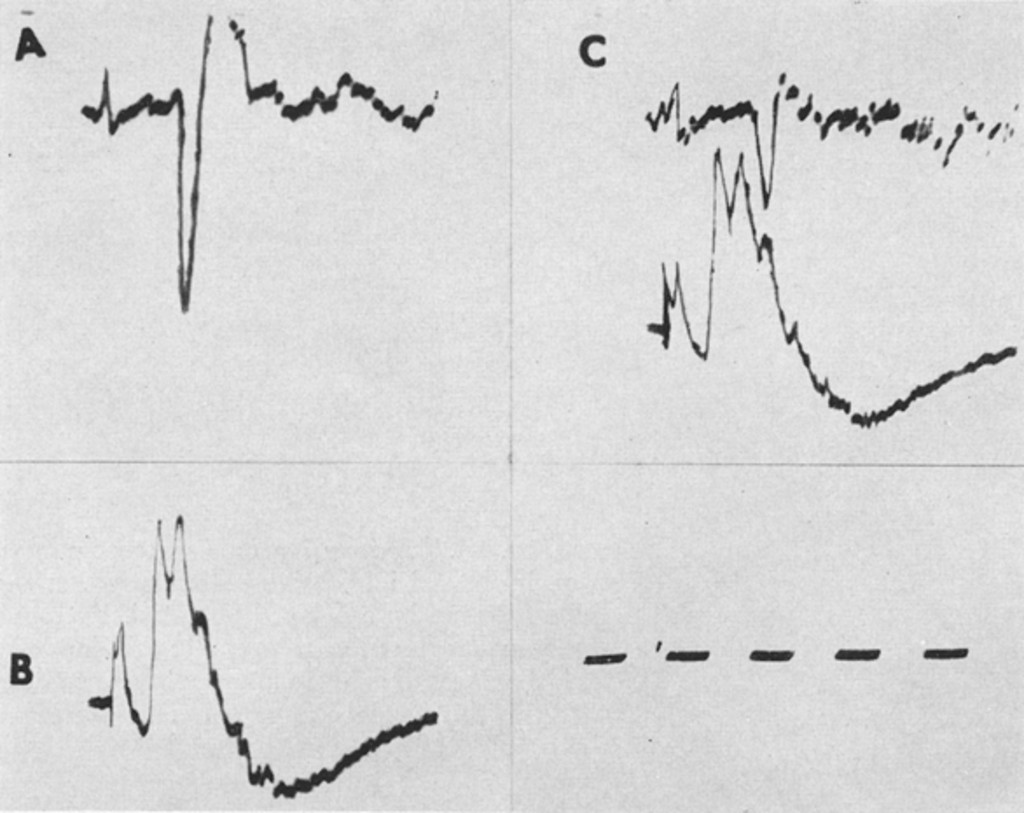 Delayed Action Potentials in the Trigeminal System of Cats in