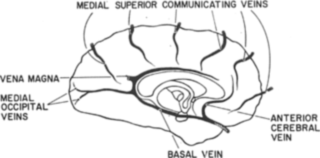 Superficial Veins Of The Brain From A Surgical Point Of View In
