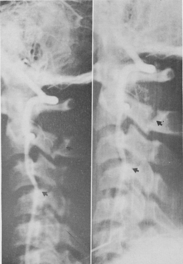 Vertebral Artery Insufficiency in Acute and Chronic Spinal