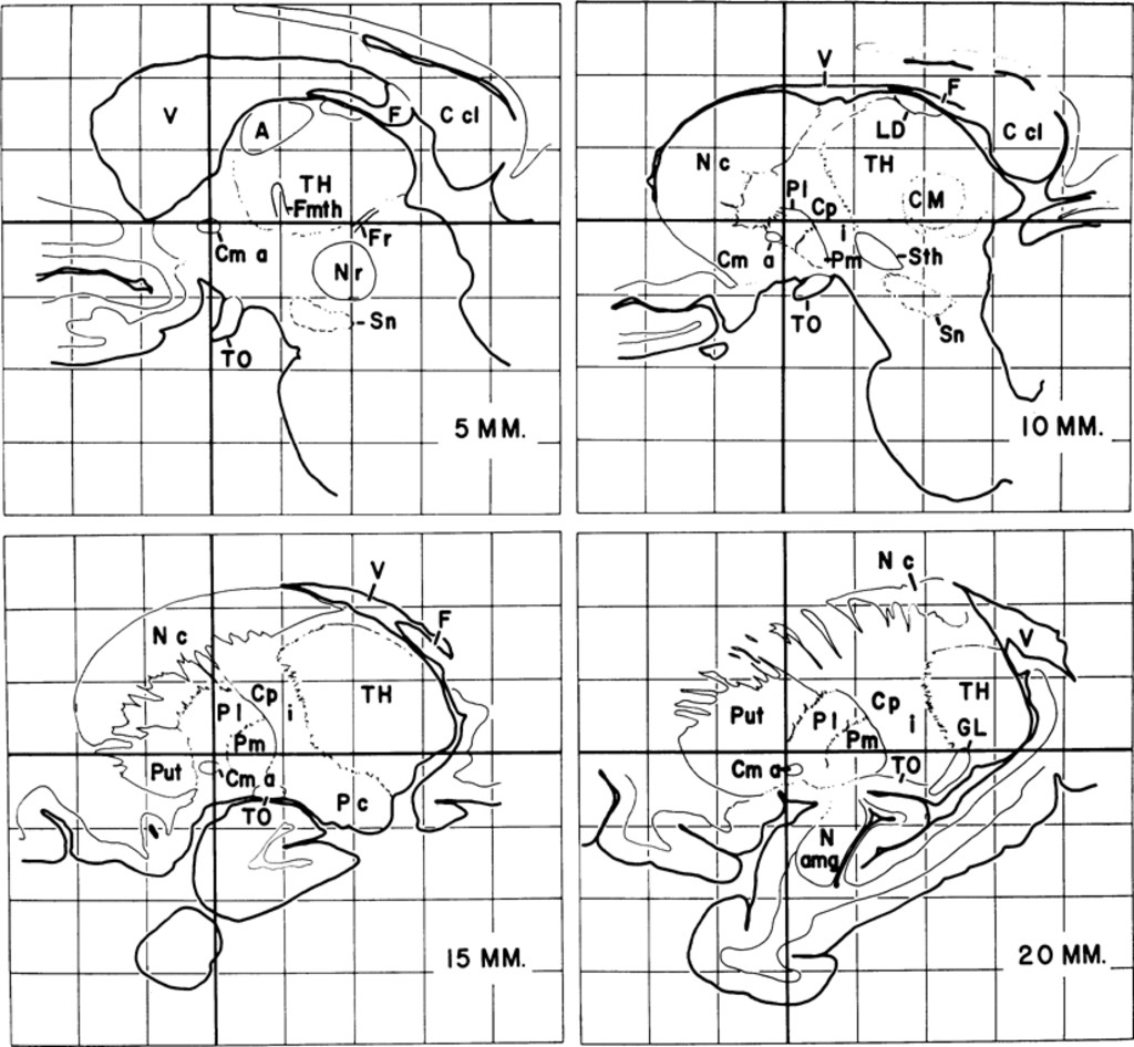 an outline atlas of the human basal ganglia with estimation of