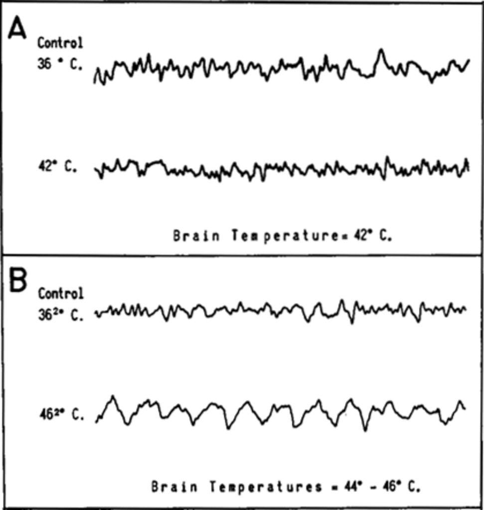Observations on Selective Brain Heating in Dogs in: Journal