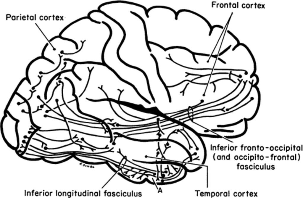Extratemporal Lesions Triggering The Temporal Lobe Syndrome In