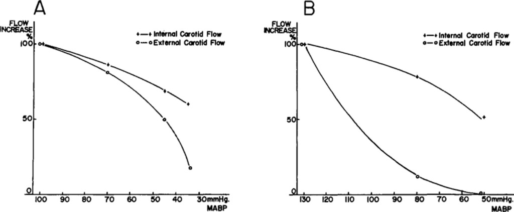 Effect Of Hypotension On Internal And External Carotid Blood Flow