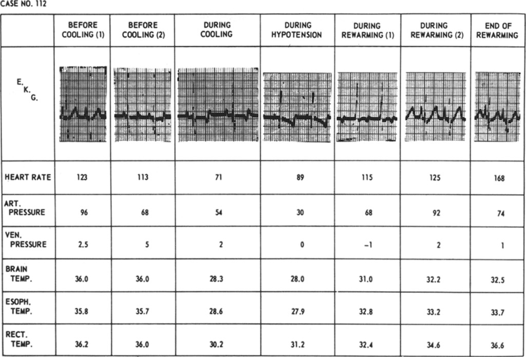 Profound Hypotension with Differential Cooling of the Brain