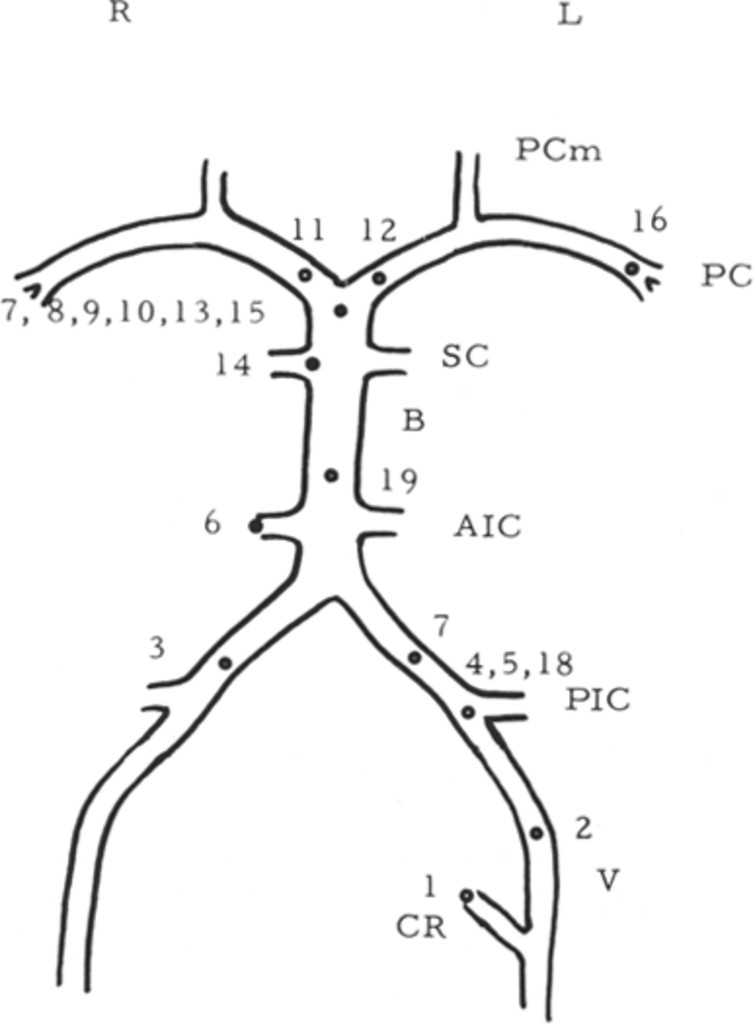 Aneurysms Of The Posterior Cervicocranial Circulation Clinical And