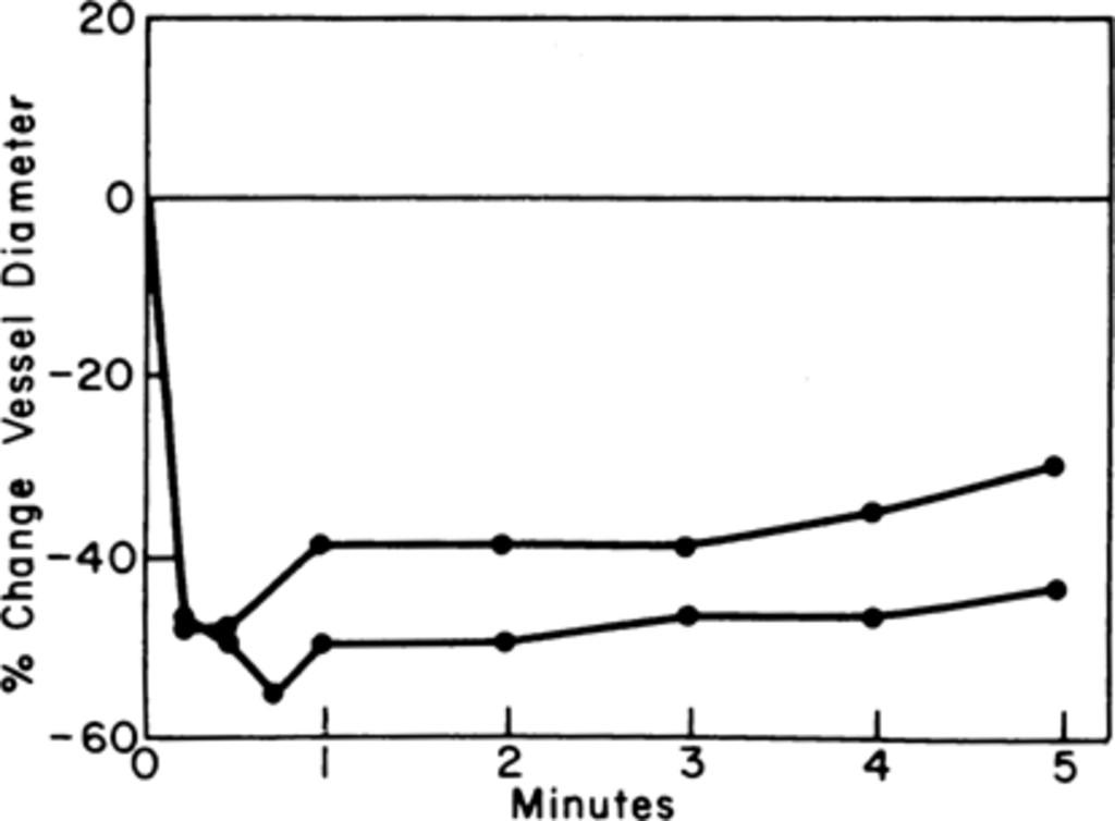 Cerebral Arterial Spasm in: Journal of Neurosurgery Volume