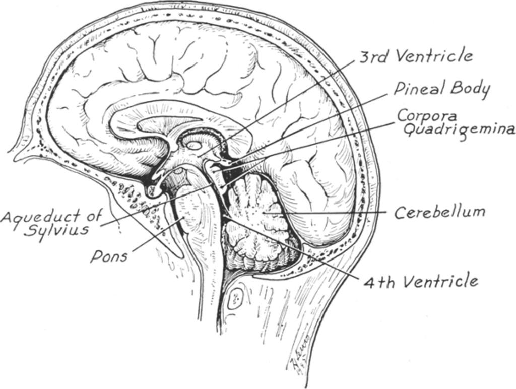 Eye Signs In Pineal Tumors Journal Of Neurosurgery