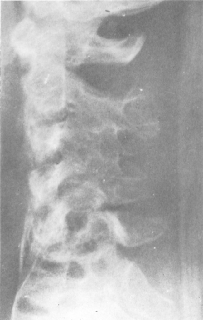 Treatment of an Unusual Case of Tuberculosis of the Cervical Spine