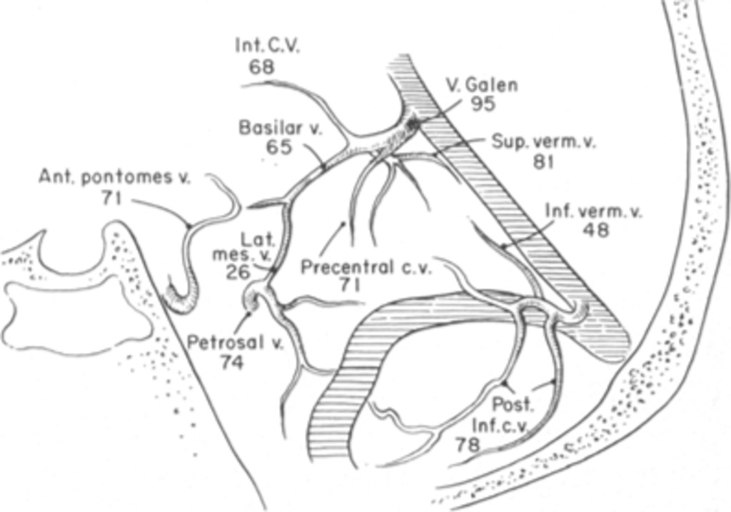 Catheter Vertebral Angiography A Review Of 300 Examinations In