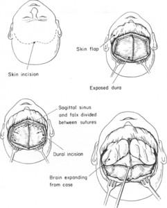 inline jns_1971_34_4_0488.fig001 bifrontal decompressive craniotomy for massive cerebral edema in