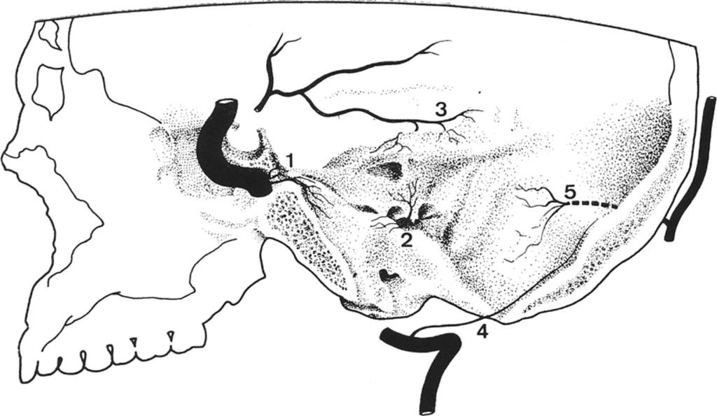 An Angiographic Study Of Meningiomas Of The Posterior Fossa In