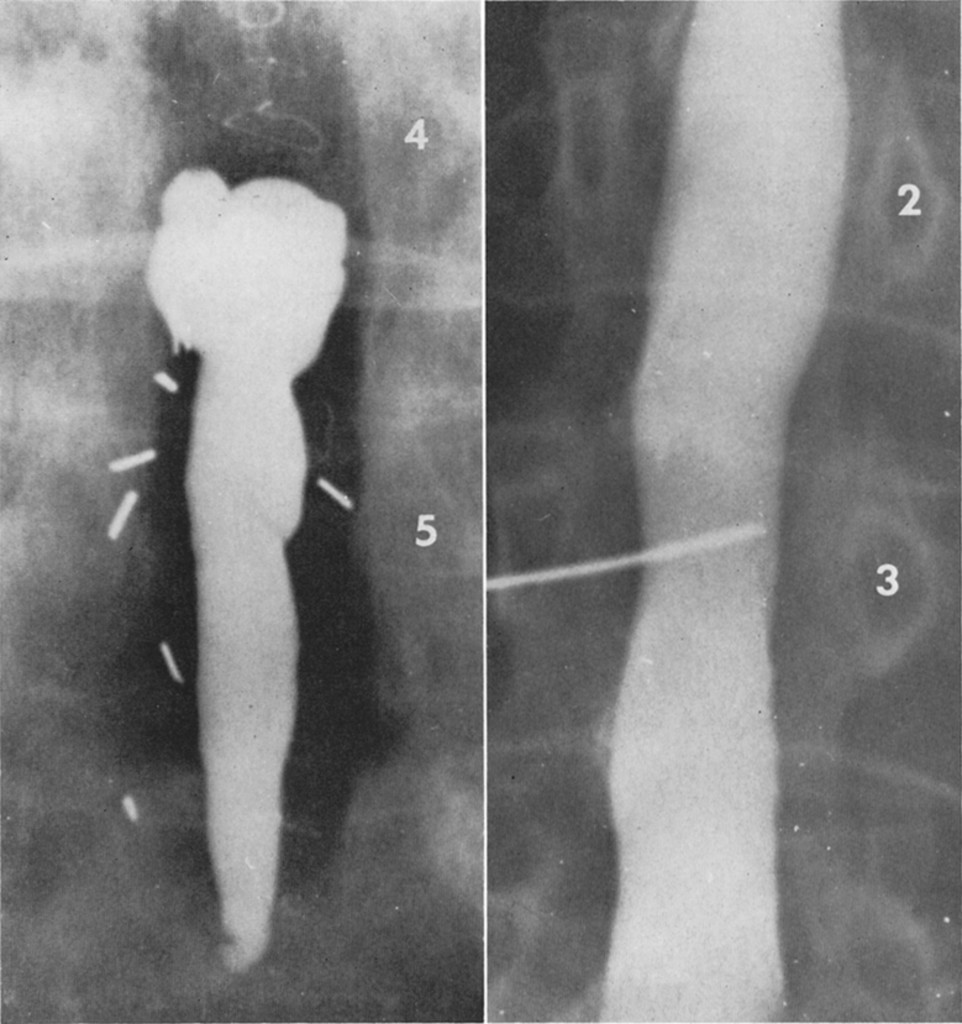 A myelographic variant in lumbar arachnoiditis in: Journal